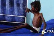 20 مسؤولا أمميا يحذرون: ملايين اليمنيين يواجهون خطر المجاعة ويطالبون بوقف الحرب