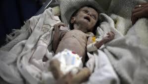 يمني ينعي رضيعته التي راحت فريسة للجوع