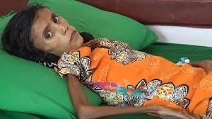 فتاة تعاني سوء التغذية تلخص تأثير الحرب وانهيار اقتصاد اليمن